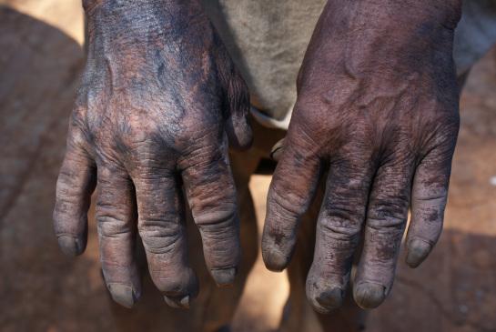 As mãos, negras de pele e de carvão, de um dos trabalhadores resgatados no interior paulista que não usava equipamento de proteção (Foto: Stefano Wrobleski/Repórter Brasil)